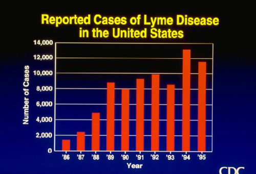 1990s Lyme Disease Growth in US